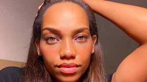 Model Pays £5,000 To Reduce Size Of Forehead By 3cm
