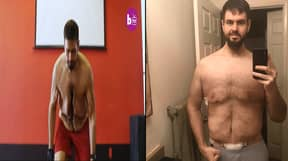 Man Can Finally Move Freely After He Has Excess Skin Removed