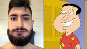 Man Turns Into Real-Life Quagmire After Allergic Reaction To Beard Dye