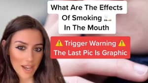 Dentist Explains The True Effects Of Smoking On The Mouth