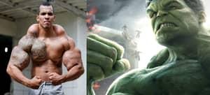 Brazilian Who Wanted To Look Like The Incredible Hulk Had An Epiphany
