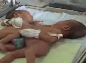 Formerly Conjoined Twins Have Successfully Been Separated in China