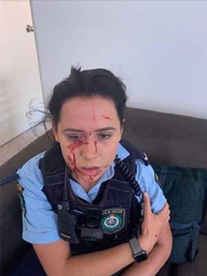 Shocking Images Of NSW Police Officer Battered On Patrol Goes Viral