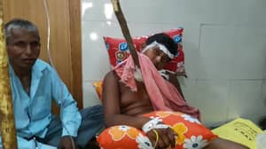Boy Survives Freak Accident Where He Was Impaled With Four Foot Tree
