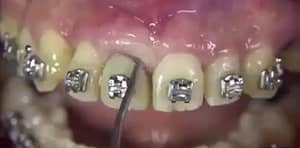 Why Not Watch This Horrible Video Of Someone Having Their Tooth Removed?