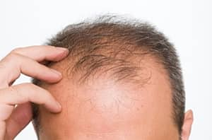 This Is Why You Lose Hair In Specific Areas On Your Head First, And Why You're Balding Prematurely