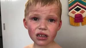 Dad Saves Son, 5, After Brutal Attack By Kangaroo Near Sydney