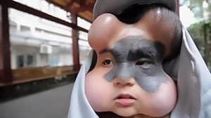 Woman With Giant Facial Birthmark Has Balloon Implants To Avoid Cancer