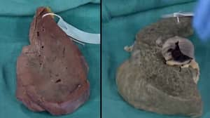 Doctor Shows What Years Of Chronic Drinking Does To Your Liver
