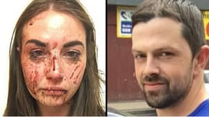Woman Bravely Speaks Out After Brutal Beating From Her Boyfriend