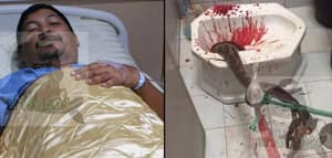 Man Whose Penis Was Bitten By A Python While He Was On The Toilet Speaks Out