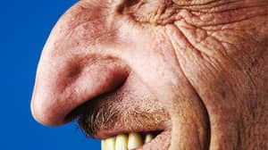 Turkish Man Mehmet Özyürek Has The World's Largest Nose On A Living Person