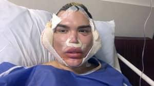'Human Ken Doll' Rodrigo Alves Warns People About Facial Procedures After Revision Surgeries