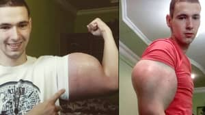 'Popeye' Bodybuilder Has Silicon Implants Put Into His Calves