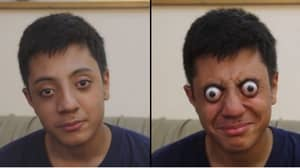 Teen Can Bizarrely Pop His Eyes Out Of His Head For One Minute