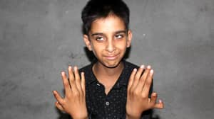 Twelve-Year-Old Boy Has An Extra Thumb On Both Of His Hands
