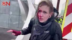 Woman Fractures Skull After Being Hit By Police Water Cannon In The Netherlands