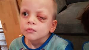 Boy Has Eye Removed Over Christmas After Mum Finds Rare Cancer In Photo