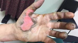 Woman Suffers Horrific Burns After Vape Battery Explodes In Her Pocket