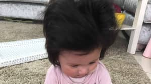 Britain's 'Hairiest Baby' Needs Blow Dry Every Night At Just Four Months