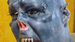 Man Who Had Nose Removed To Look Like An Orc Shows What He Looked Like Before