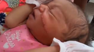 Baby Left With Huge Cut Across Her Face After C-Section