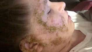Woman Left Smelling Like 'Old Pennies' After Skin Became Hooked On Steroid Cream