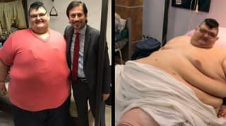 'World's Most Obese Man' Sheds Half His Body Weight After Gastric Surgery