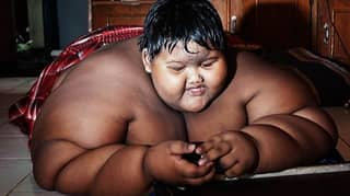 'World's Fattest Boy' Loses Half His Body Weight After Life-Saving Surgery