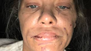 Woman Left With Lumpy Lips And 'Piggy Snout' After Surgery Goes Wrong