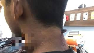 Fish Jumps Out Of The Water And Stabs Teen In The Neck