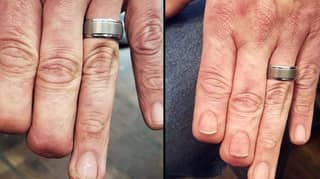 Tattooist Restores Nails On Man Who Lost Two Fingertips