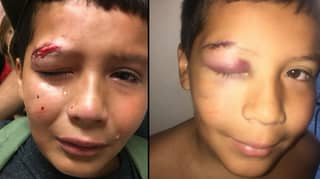 Bullied Kid Won't Fight Back Because 'It's Not The Jedi Way'