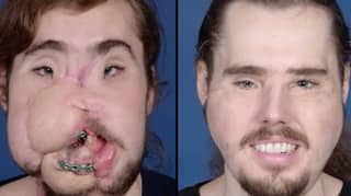 Man Who Shot Himself In The Face Undergoes Life-Changing Face Transplant