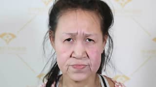 Teenager Who Looked Like A 'Grandmother' Given 'New Face'