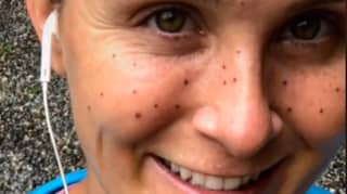 Woman Has To Get Laser Removal After Freckle Tattoos Go Horribly Wrong