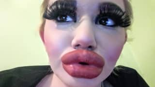 Woman Has Quadrupled The Size Of Her Lips With 17 Injections