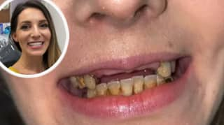 Dentist Repairs Woman's Teeth After She Hid Her Smile For Years