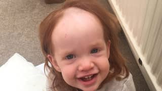 Little Girl Left 'Looking Like Pennywise' After Smothering Herself In Hair Removal Cream
