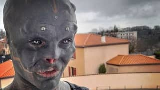 Man Who Had Nose And Top Lip Removed To Look Like A 'Black Alien' Struggles To Speak