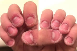 Why You Shouldn't Bite Or Pick The Skin Around Your Finger Nails