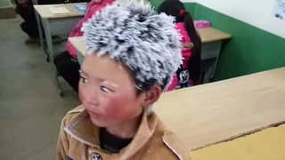£245k Raised For Chinese Boy Whose Hair Froze On Way To School