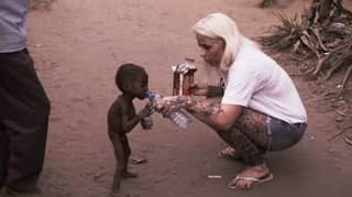Starving Boy Abandoned For 'Being A Witch' Undergoes Incredible Transformation