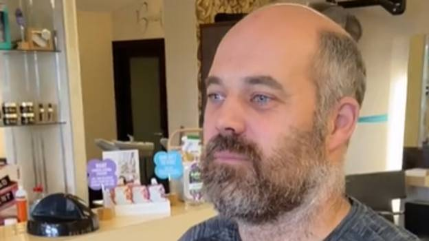 Balding Man Looks Decade Younger Thanks To New Hair System
