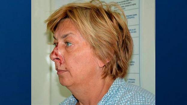 Police Identify Mystery Woman With Memory Loss Discovered On Croatian Island