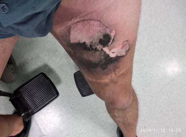 The e-cigarette device burst into flames leaving the man with burns to his thigh and genitals. Credit: CEN