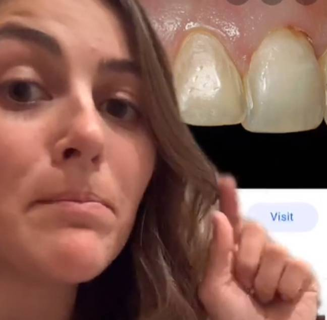 Dr Mawson highlighted that veneers and crowns are very different things. Credit: TikTok/Dr Emi Mawson