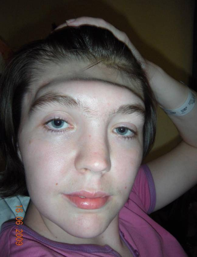 Gráinne Kealy was left with no forehead for two years. Credit: Gráinne Kealy