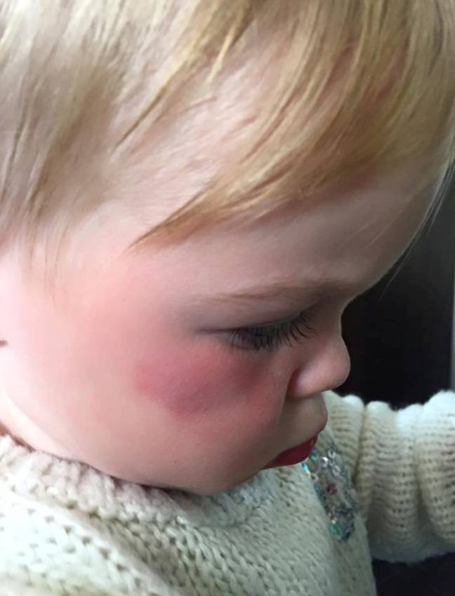 Mum Emily Vincent says a flock of seagulls attacked her little girl Jessie. Credit: SWNS