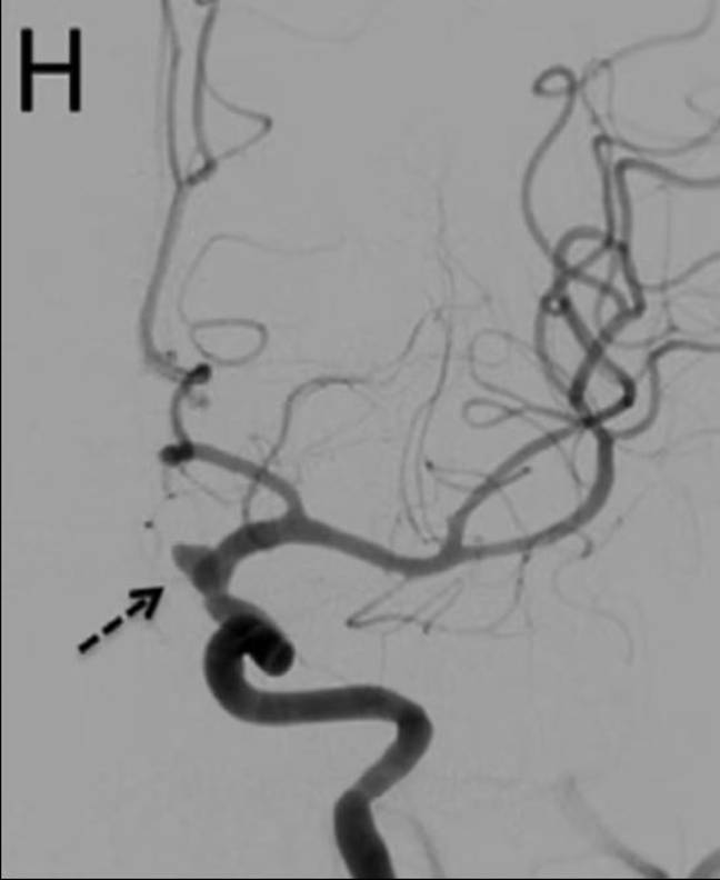 The arrow indicates the patient's aneurysm. Credit: Nagoya City University/Journal of Stroke and Cerebrovascular Diseases